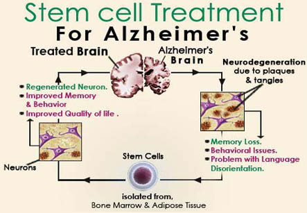 Alzheimer's Stem Cell Therapy