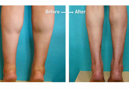 Ankle Liposuction