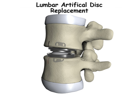 Artificial Disc Replacement