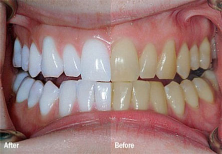 Chemical Teeth Whitening