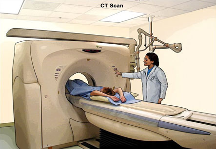 Computed Tomography CT Scan