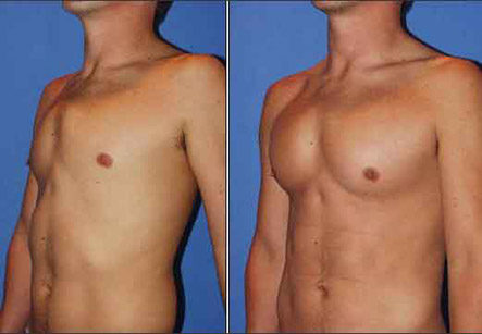Male Breast Implants